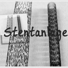 Stentanlage
