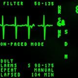 Herzinfarkt: neues aus der Studien-Ecke